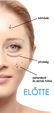 Tisztító infúziós arcfeltöltés